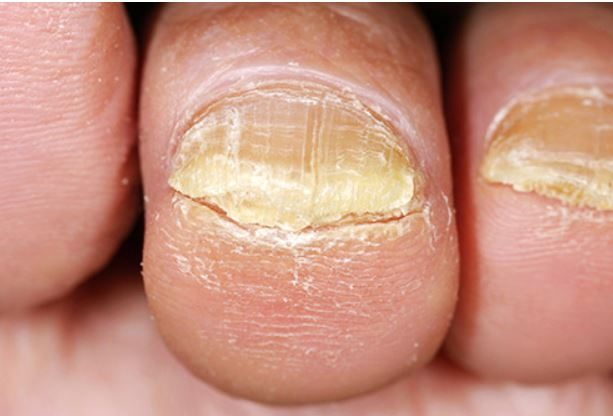 Clear Nail Fungus Without Side Effects